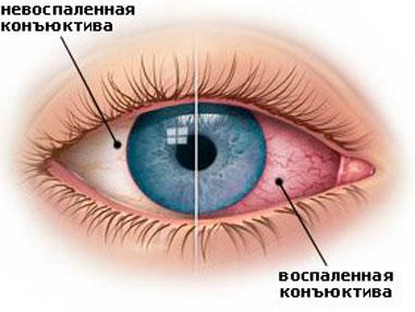 синдром сухого глаза симптомы фото