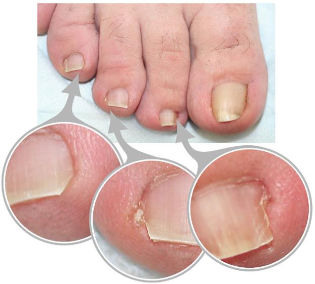 Wartner от грибка ногтей отзывы