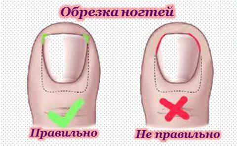 vroshie-nogti-foto-2