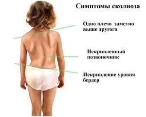 skolioz-rebenka-foto-4