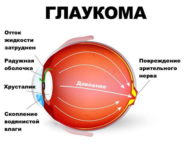 glaukoma-kovarnaja-bolesnj-foto-2