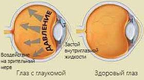 glaukoma-kovarnaja-bolesnj-foto-4
