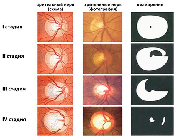 glaukoma-kovarnaja-bolesnj-foto-5