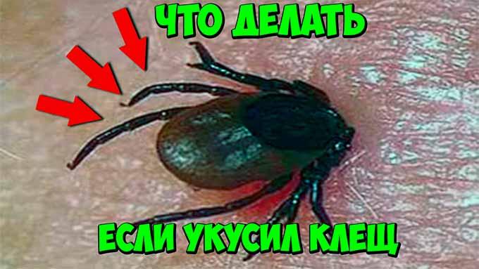 kak-zachititcja-ot-klecha-foto-1