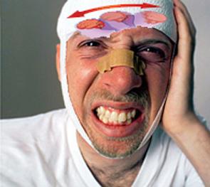 sotrjasenie-golovnogo-mozga-foto-0