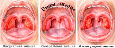 angina-chem-opasna-i-kak-lechijt-foto-2