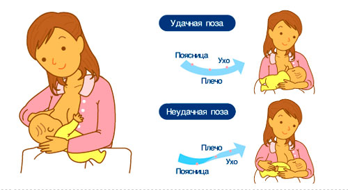 trudnosti-grudnogo-vskarmlivanija-foto-2