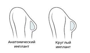 mammoplastika-realizuet-mechti-foto-3