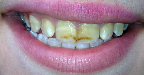 flyuoroz-zubov-foto-1